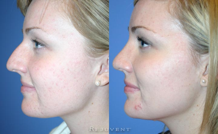 Nose Hump removal Rhinoplasty