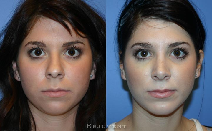 Rhinoplasty patient 20s