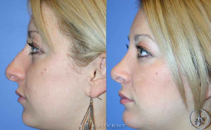 Hump removal with Rhinoplasty