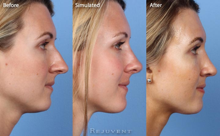 Nose surgery simulated results