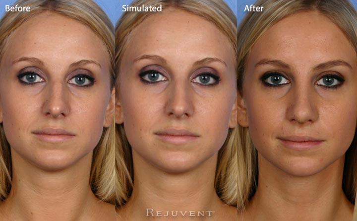 Front view Rhinoplasty simulation