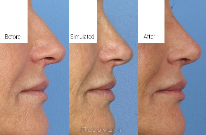 Simulated results versus final rhinoplasty