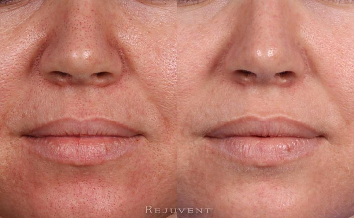Rejuvapen microneedling before and after