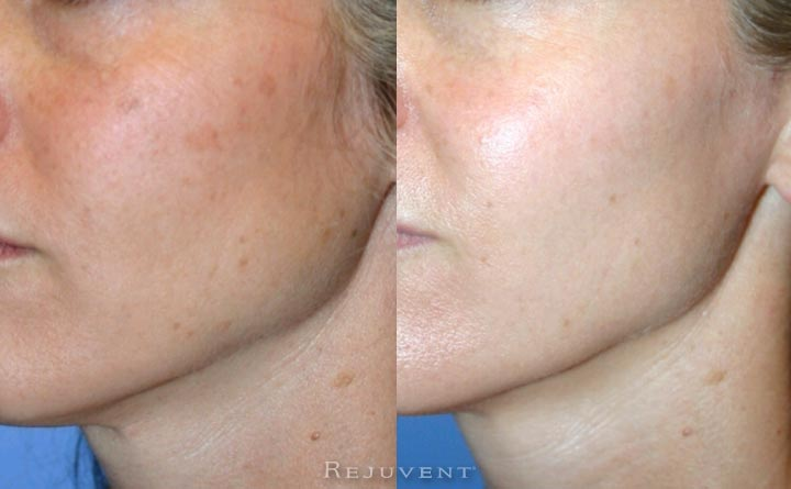 Patient in her 30s skincare results
