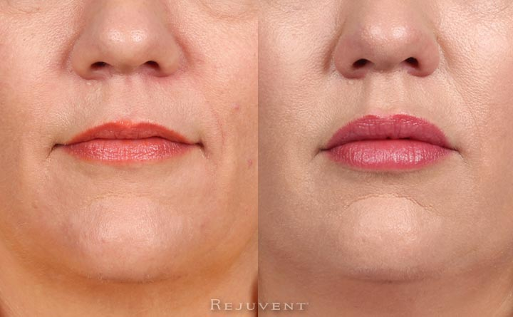 Juvederm and Restylane on lips
