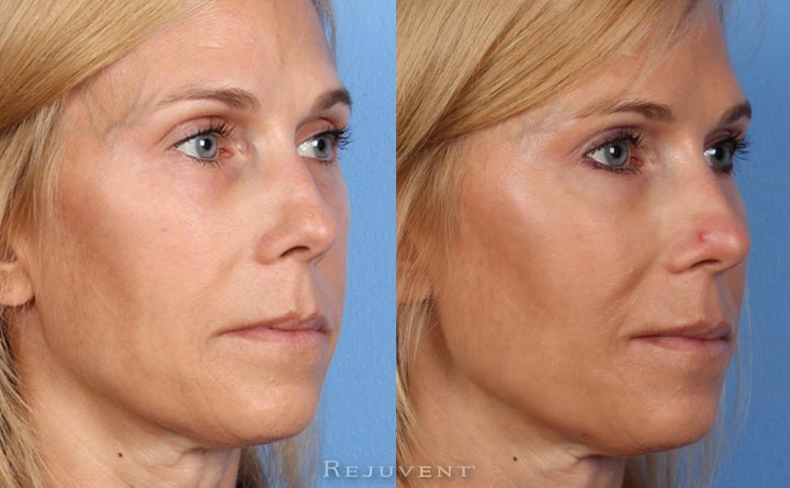 Liquid Facelift Volume and Facial recontouring