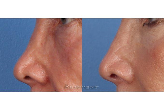 Non-surgical Nose