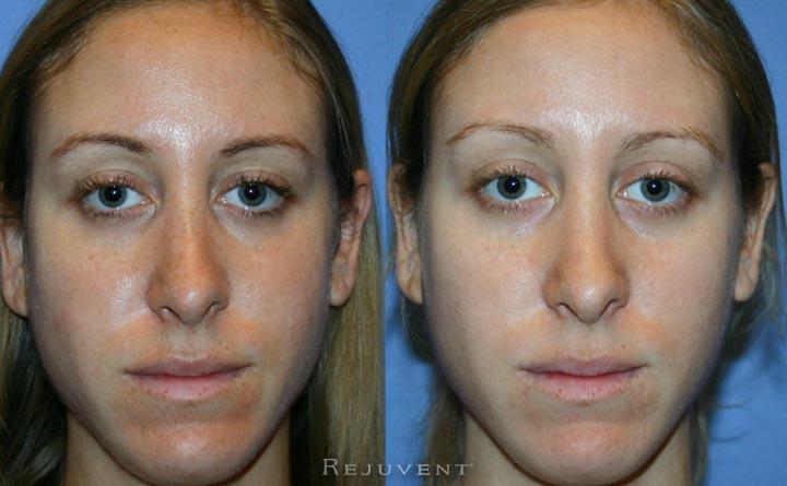 Skin of 30s patient