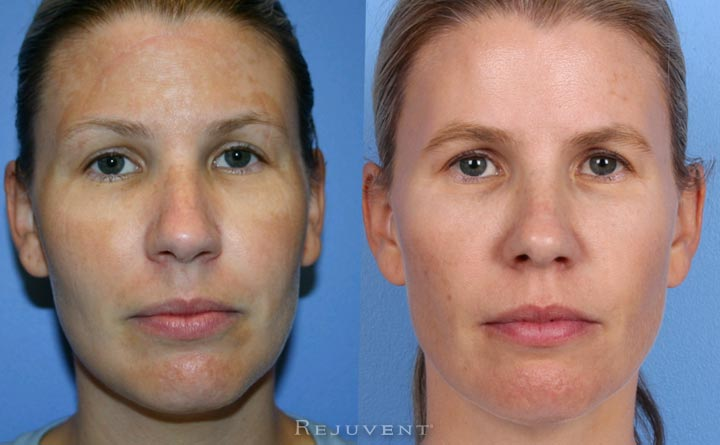 30s skin improvement with skin care and skin treatments