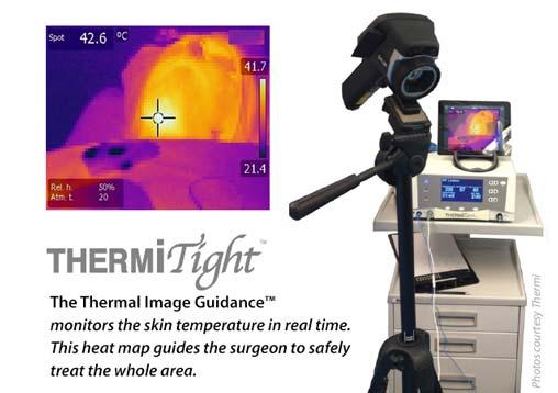 ThermiTight heat map