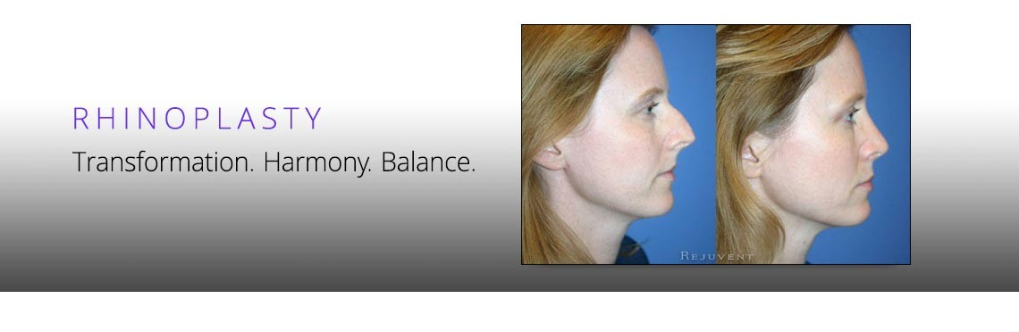 Transformation after Rhinoplasty