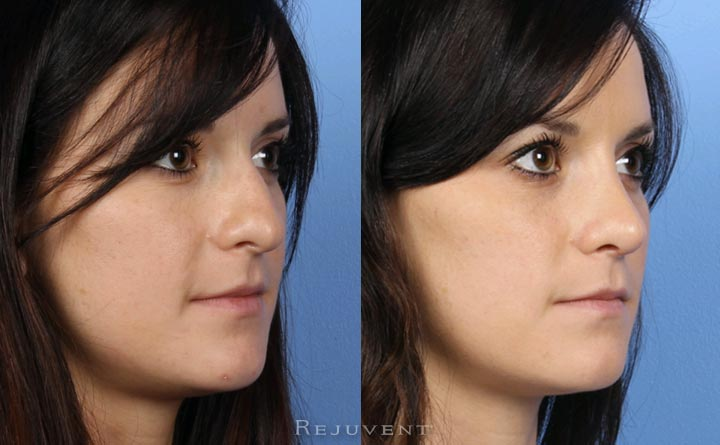 Rhinoplasty Nose Surgery 20s patient
