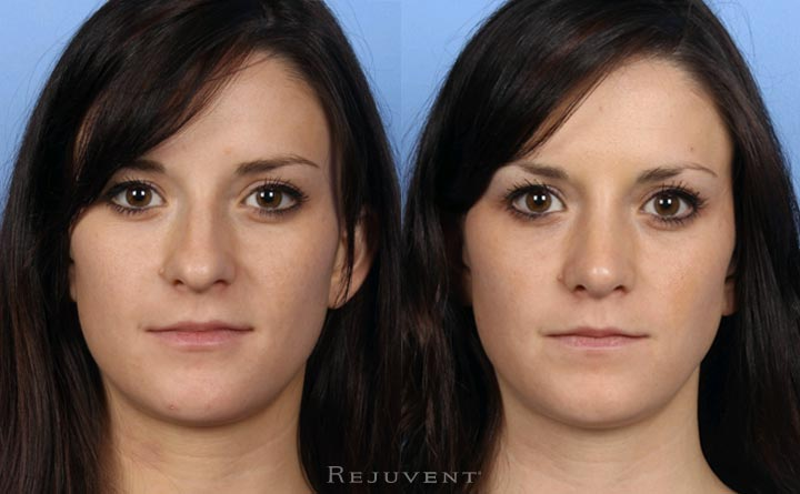 Rhinoplasty Nose Surgery 20s patient Front View