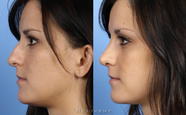Rhinoplasty Nose Surgery 20s patient Side View