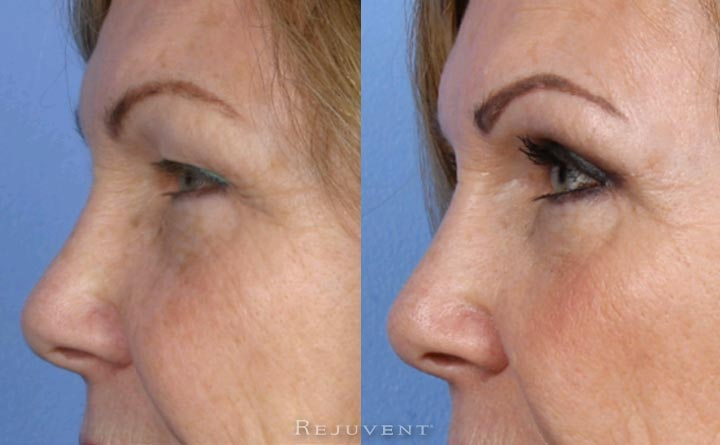 Amazing Upper Eyelid surgery at Rejuvent