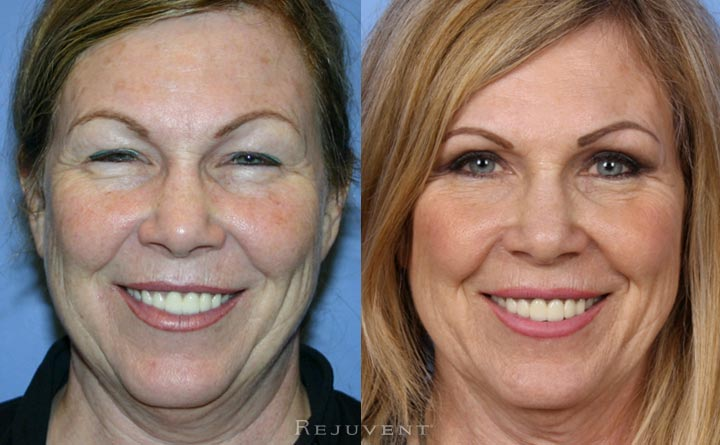Upper eyelid surgery Rejuvent