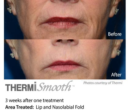 Thermi smooth Lips and nasolabial fold
