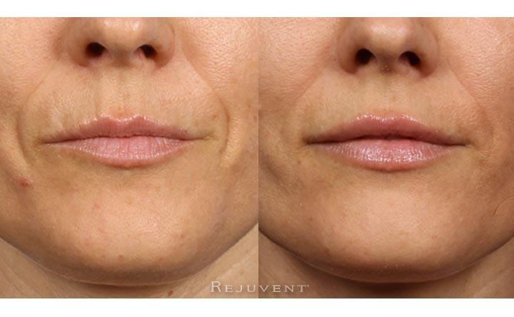 Lip enhancement and nasolabial folds