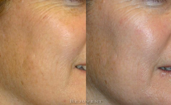 Aging skin with less brown spots