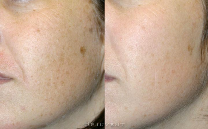 Less hyperpigmentation after skin treatment