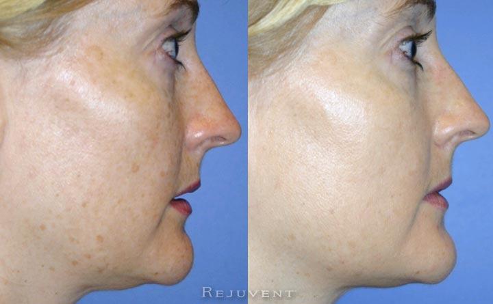 Aging Skin less pigmentation