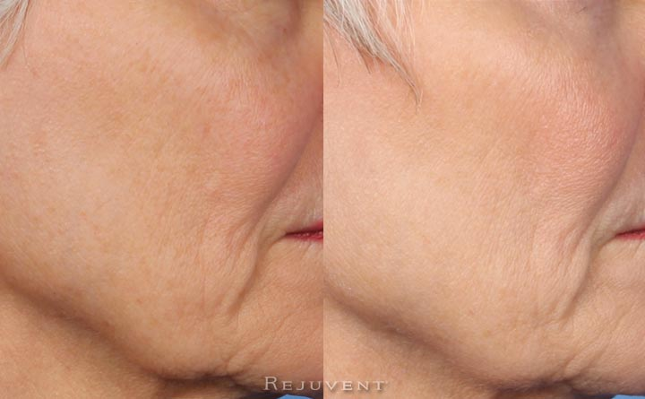 Fotofacial skin texture improvement