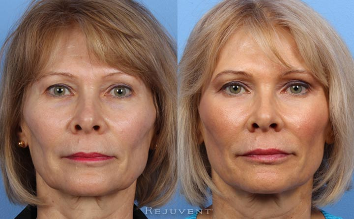 Liquid Facelift natural results