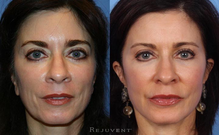 Liquid facelift on aging skin