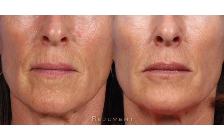 Aging Skin Before and After Skin Rejuvenation