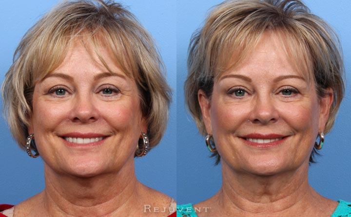 Botox in Aging Skin