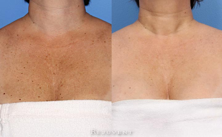 Chest Skin transformed by Spa Treatments