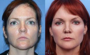 Liquid Facelift Amazing results
