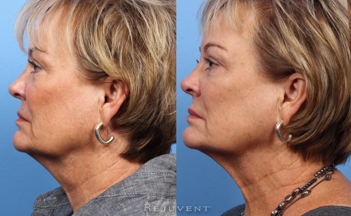 ThermiTight Neck Rejuvenation • Rejuvent Medical Spa Scottsdale
