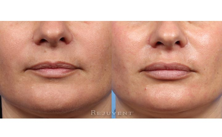 Lip Augmentation with lip fillers