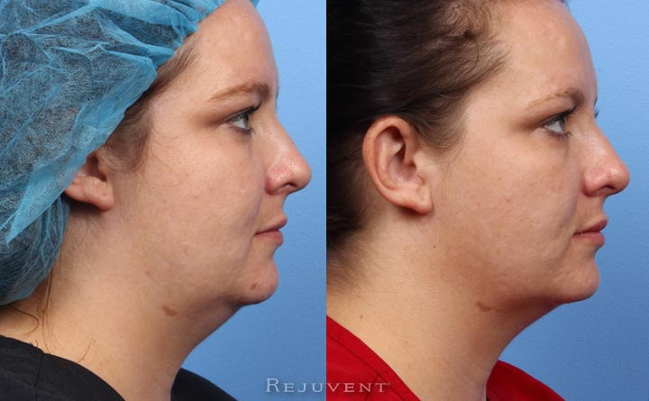 Thermi Tight neck and jawline results