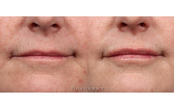 Lips before and after volumizing injections
