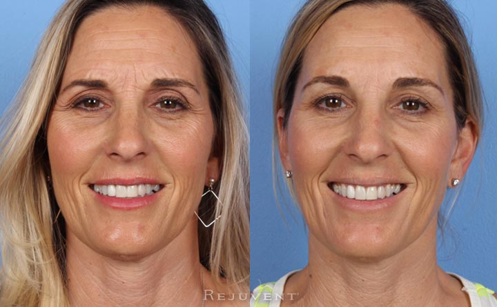 Less wrinkles with Botox
