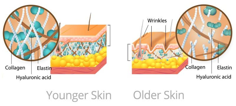 Younger skin vs. Older Skin