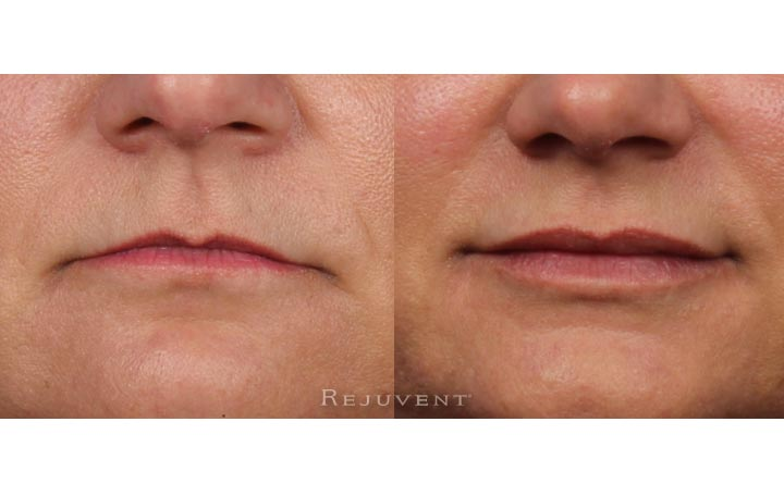 Volumized Lips with Restylane