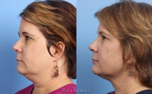 Thermitight neck reduction results