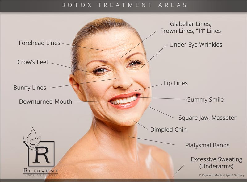 Areas injected with Botox at Rejuvent
