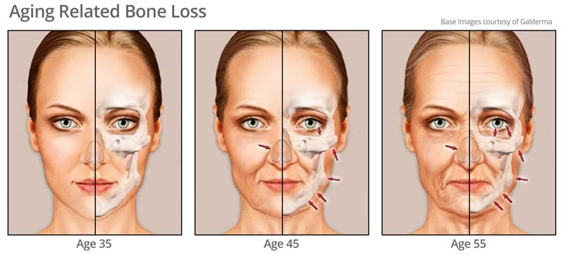 Age related bone loss as you age