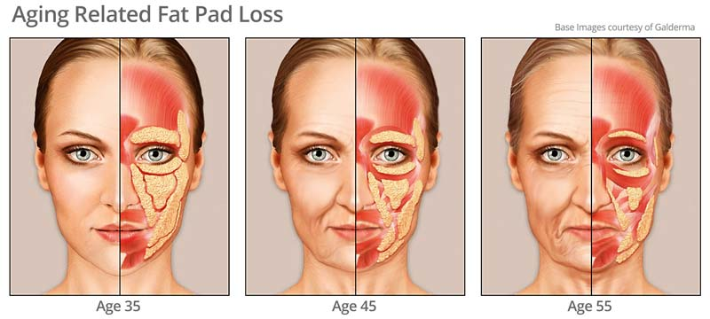 Age related fat pad loss