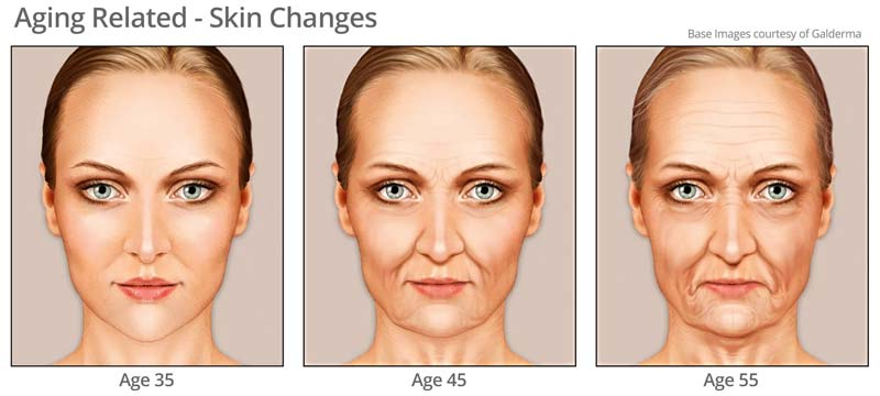 Aging related skin changes