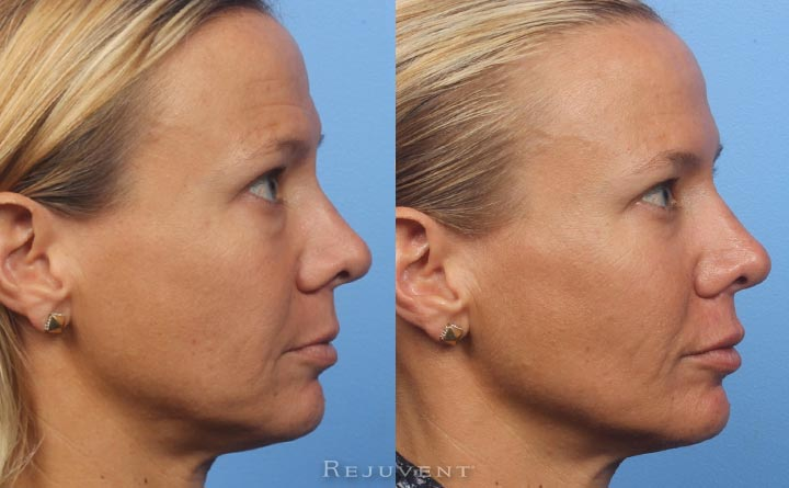 Beautiful Liquid facelift Results Side view