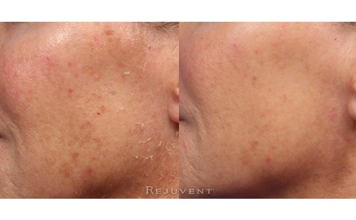 Improve skin tone and texture with chemical peels