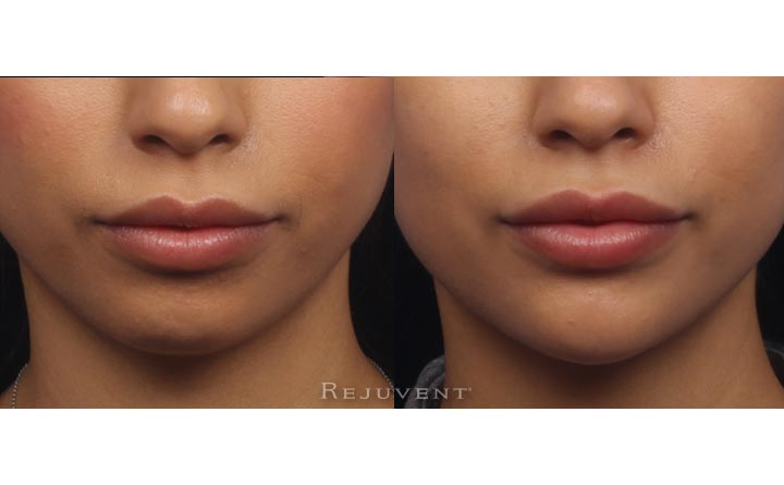 Chin sculpting non-surgical front view