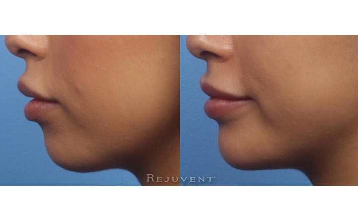 Chin sculpting with volumizing fillers side view