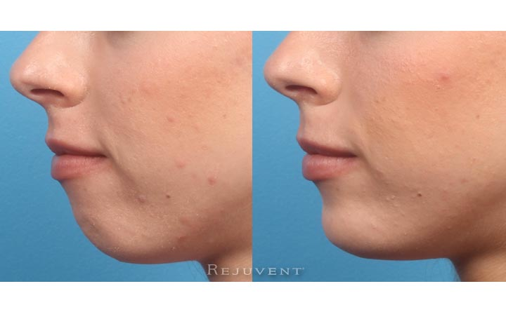 Filler injections chin non surgical chin augmentation