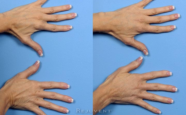 Hand results with injectable filler with Radiesse